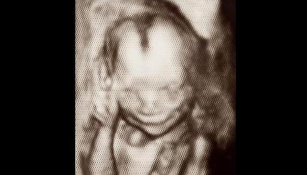 Ecografía muestra a un feto sonriendo