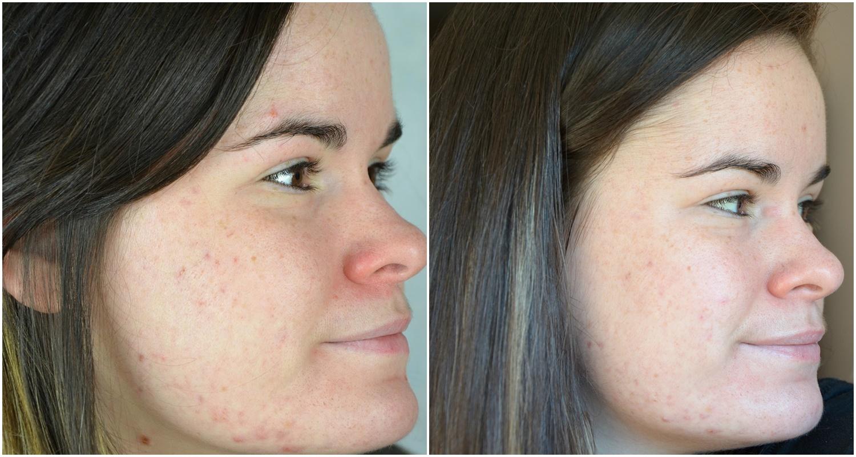 Troisième moi de traitement contre l'acné (mars 2017) côté droit comparaison février et mars 2017