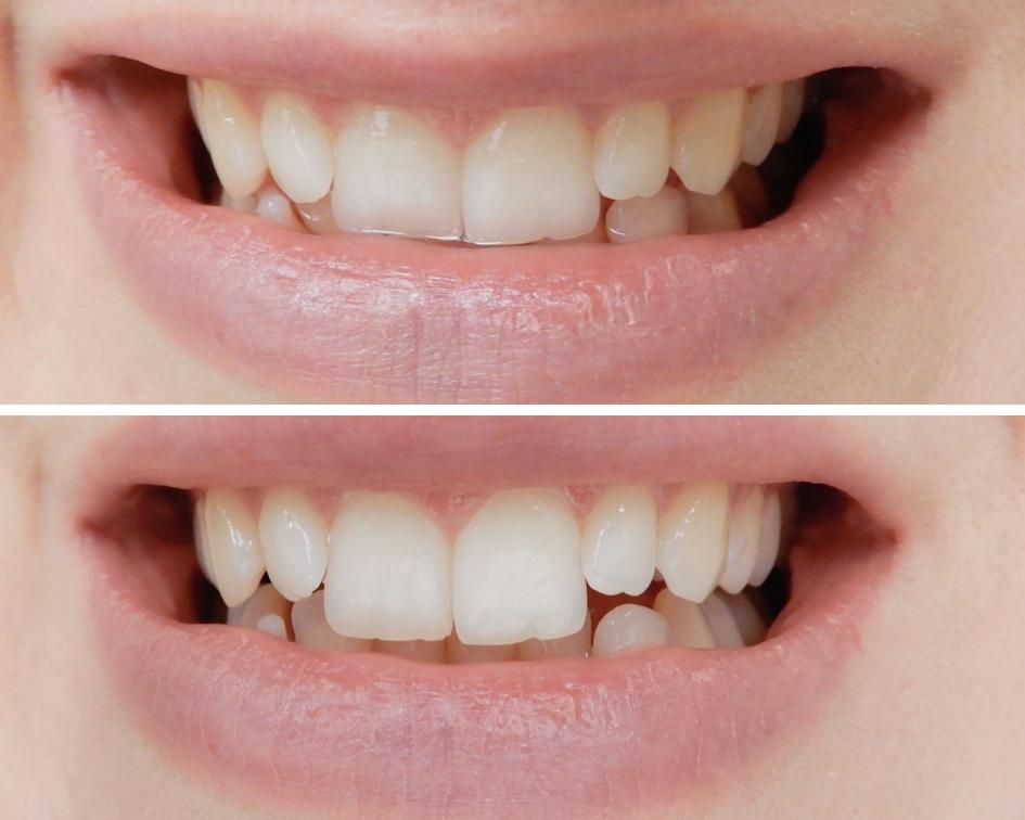 Mohani smile, naturalne wybielanie zębów węglem, węgiel aktywny, proszek węglowy do wybielania zębów, pasta z węglem, proszek z węglem mohani, wybielająca pasta z węglem mohani, mohani, helfy, helfy.pl,