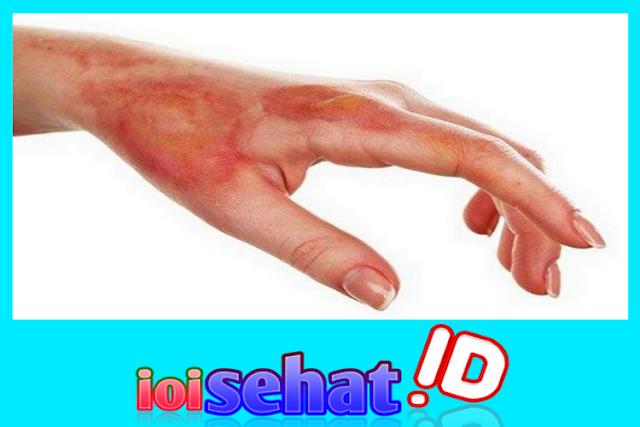 Menghilangkan luka bakar secara alami inilah tipsnya jika anda mengalaminya