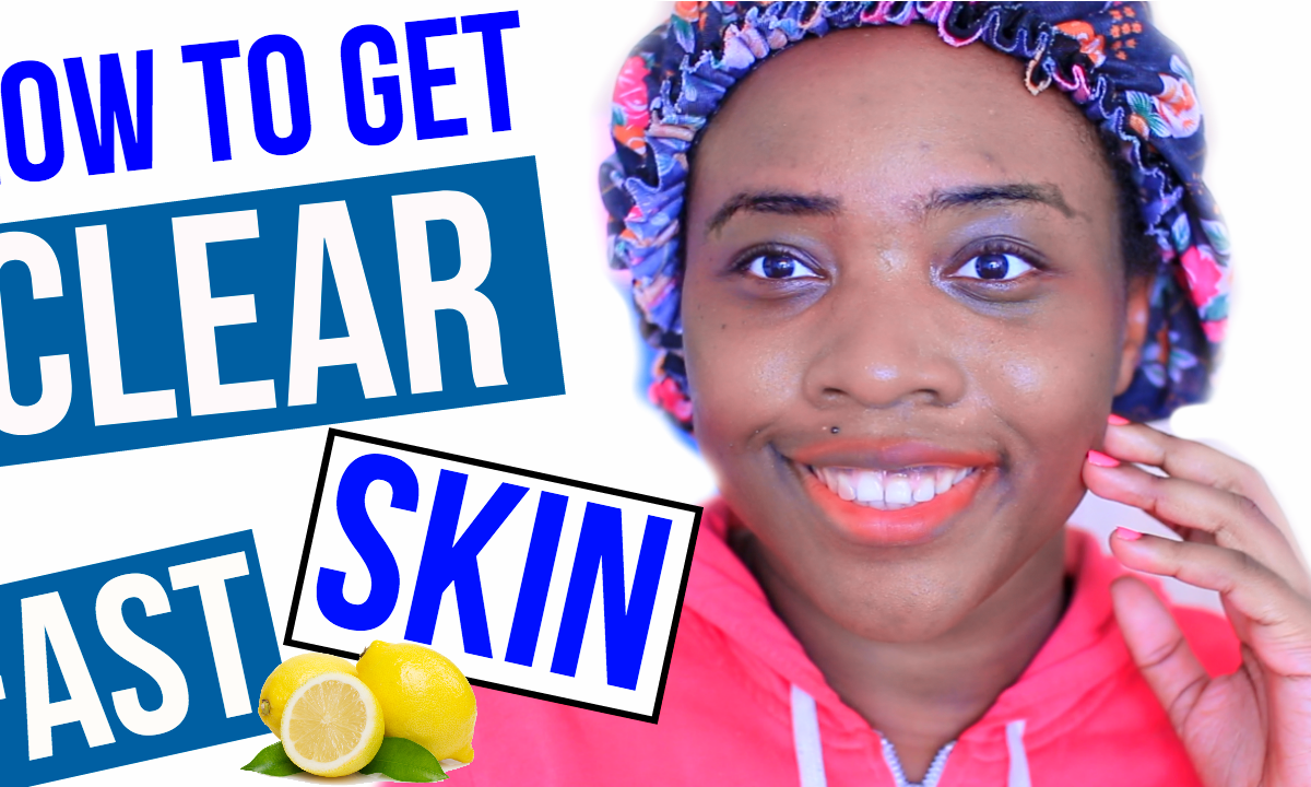How To Get Clear Skin Overnight | Adashofvanilla