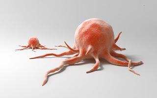 Tips Pengobatan Alami Untuk Membantu Mengangkat Kanker Nasofaring Secara Efektif, Aman Tanpa Efek Samping