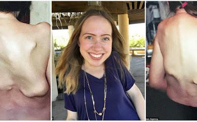Συγκλονιστική ιστορία: Αυτή η 23χρονη υποφέρει από μια σπάνια πάθηση που την μετατρέπει σε «πέτρα»