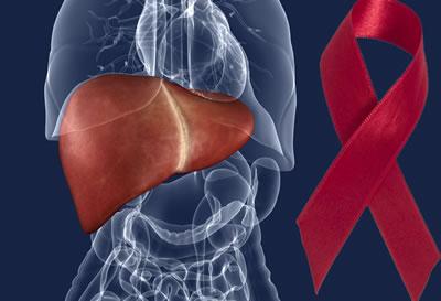 Curso Online de Hepatites Virais e HIV: Um Foco para Dentistas