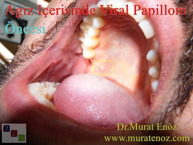 Oral Human Papillomavirus (HPV) Infection - Symptoms, Diagnosis