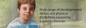 Cara Mendeteksi Anak Down Syndrome Sejak Dalam Kandungan