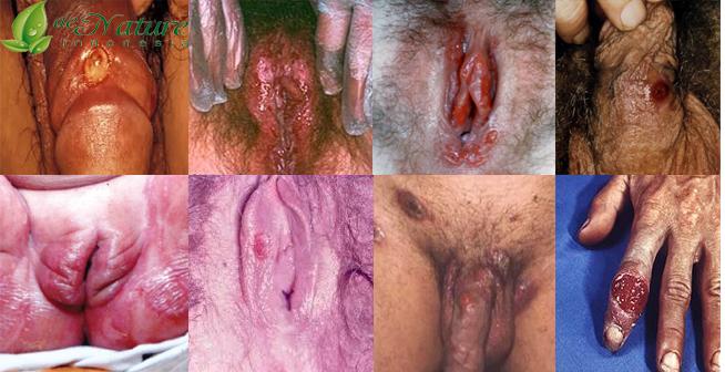 Bagian dalam vagina