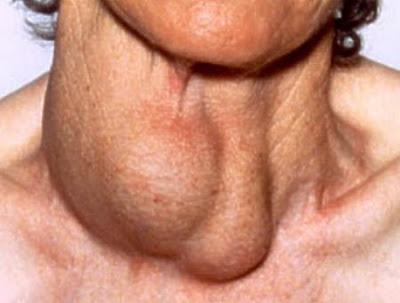 gambar sesoorang hipertiroid