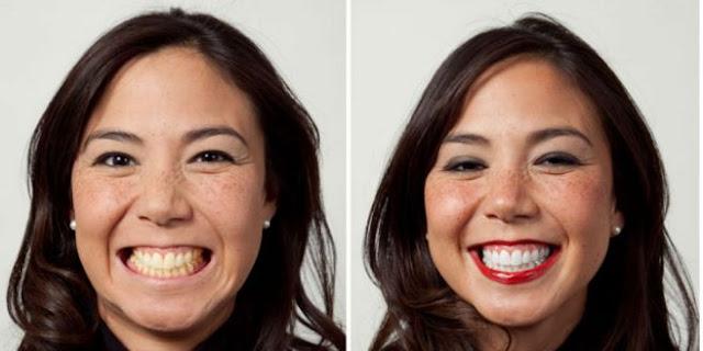 Video ; Cara Mudah Hilangkan Gigi Kuning dalam Tempo 3 Menit