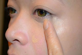Di chứng cắt mí mắt là gì