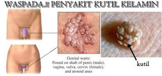 obat kutil kelamin alami paling manjur dan ampuh