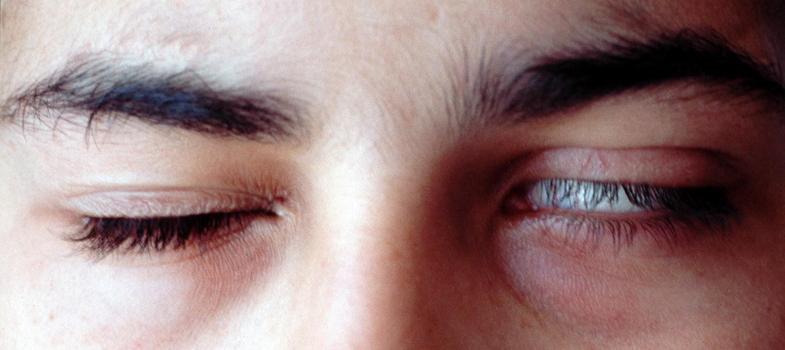 fenómeno ocular