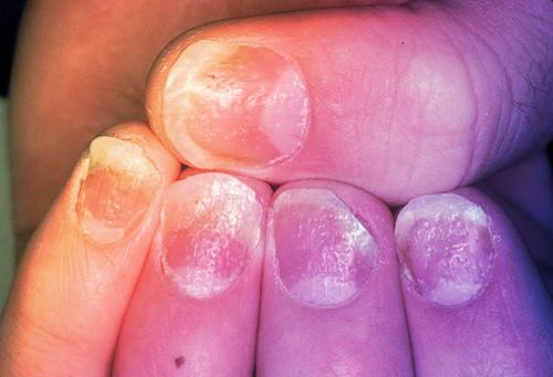 Tratamientos Caseros Contra la Psoriasis Ungueal