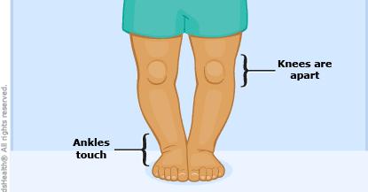 Mijloace pentru întinderea genunchiului, Diagnostic