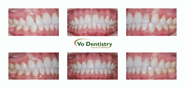 Peg laterals, small teeth, tooth colored restorations, composite restorations, Lawrenceville, Norcross, Lilburn, Dacula, GA, Georgia