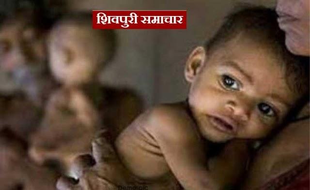 कुपोषण का कहर: कोलारस नगर में मिले 22 कुपोषित बच्चे | kolaras News