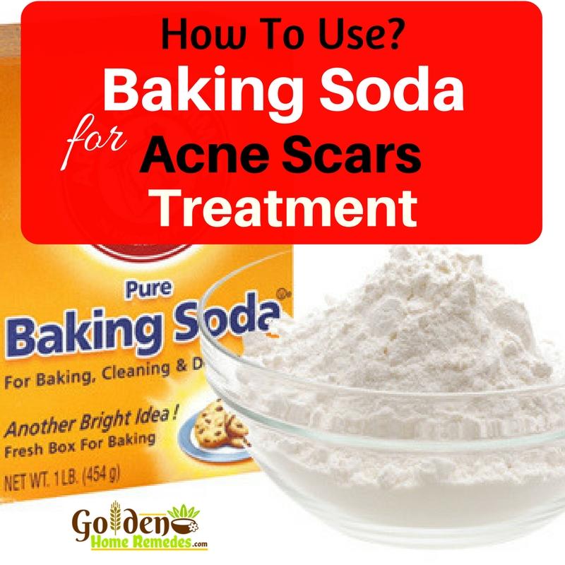 Oily Hair Home Remedies: Acne Home Remedies Baking Soda