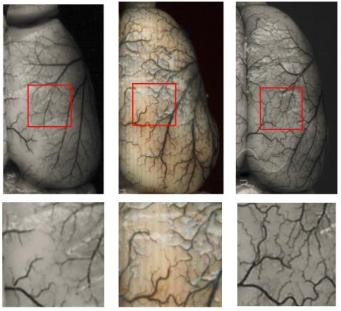 図:下肢遠隔虚血の動脈新生効果