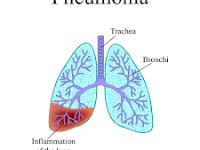 Penyebab dan gejala Pneumonia