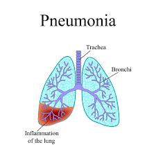 Penyebab dan gejala Pnemonia