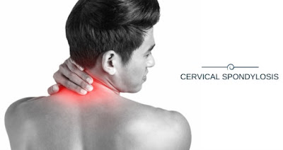 Health tips and home remedies for cervical spondylosis