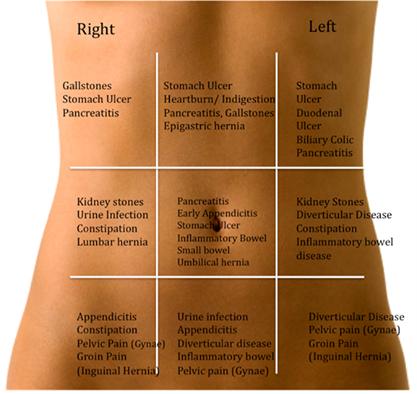 Sakit Bagian Bawah Perut Sebelah Kiri Berbagai Bagian Penting