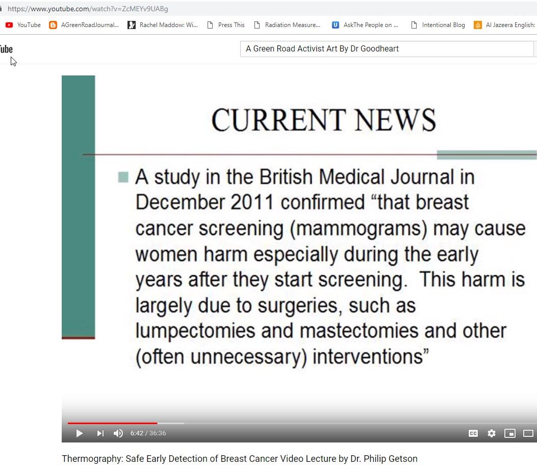 Xrays, Mammograms, Ionizing Radiation Are Biggest Cause Of