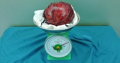 Phẫu thuật thành công khối u thượng thận 850 Gram