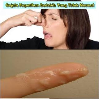 Jual Obat Herbal Ampuh Untuk Keputihan Berlebih Di Klungkung