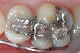 Trám răng sâu thực hiện trong những trường hợp nào?