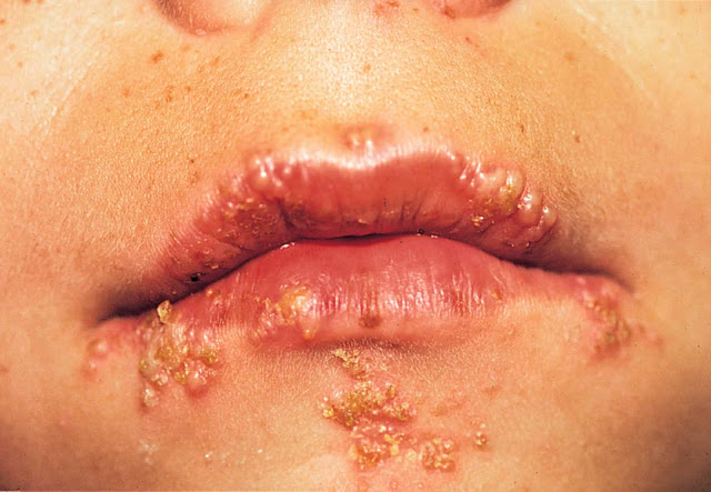 Cara Diagnosis dan Penyebab Herpes Genital