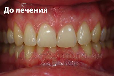 Фото зубов пациента до лечения брекетами