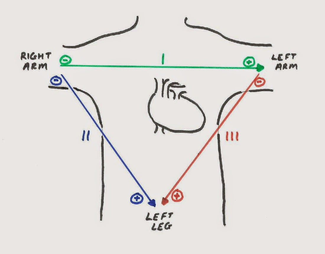 4 Lead Ekg Placement Diagram 1999 Saab 9 3 Wiring Leads Attached Bing Images