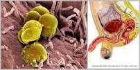 Harga Obat Penyakit Kencing Nanah Di Apotik K24 Kimia Farma