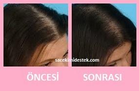 saç mezoterapisi öncesi ve sonrası 18