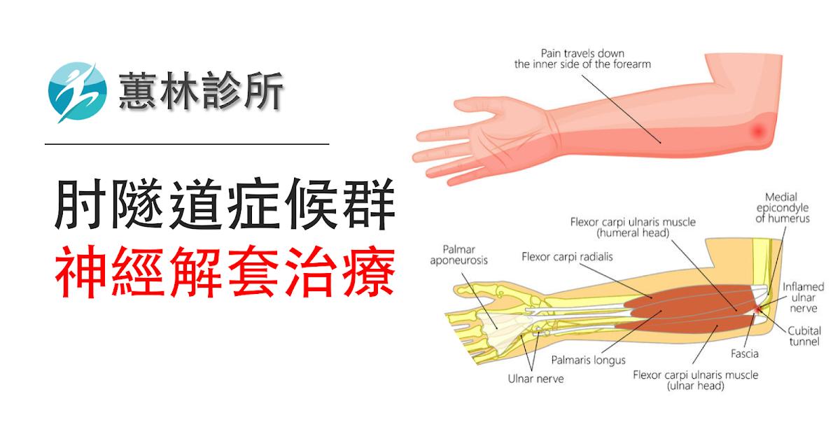 邱柏鈞醫師: 【手指麻痛無力】肘隧道癥候群 神經減壓治療 (不開刀介入性治療)