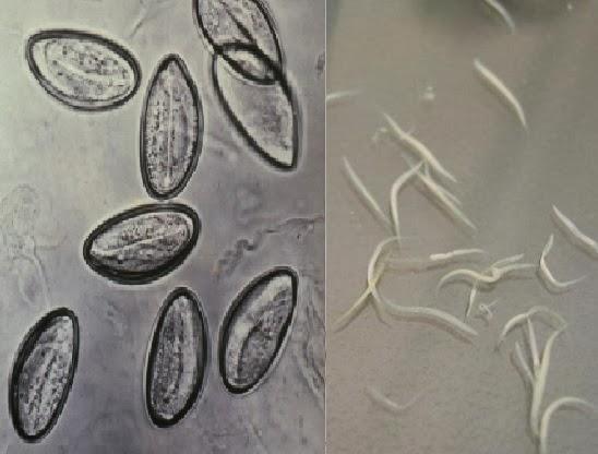oxyuris vermicularis cacing kremi) módszer graham pinworms