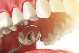 Penyebab Gigi Berlubang Yang Wajib Anda Waspadai