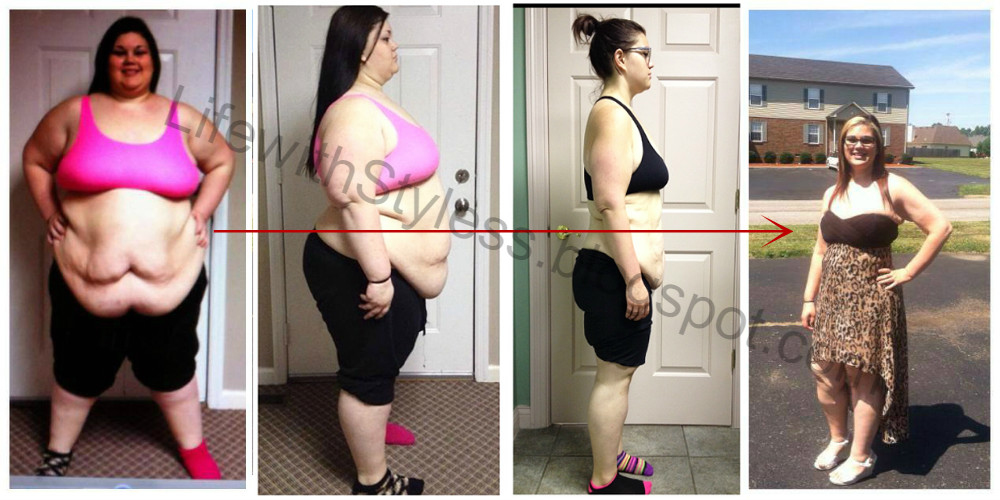How This 17-Year-Old Girl Lost Half Her Weight In A Year - Shocking!