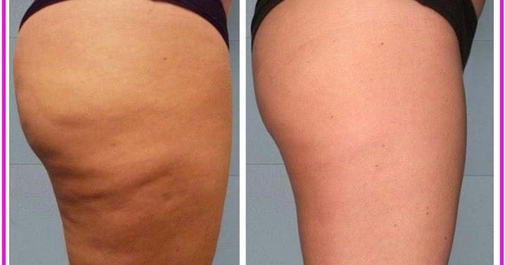 Cellulite: i 10 rimedi per eliminarla - Farmaco e Cura