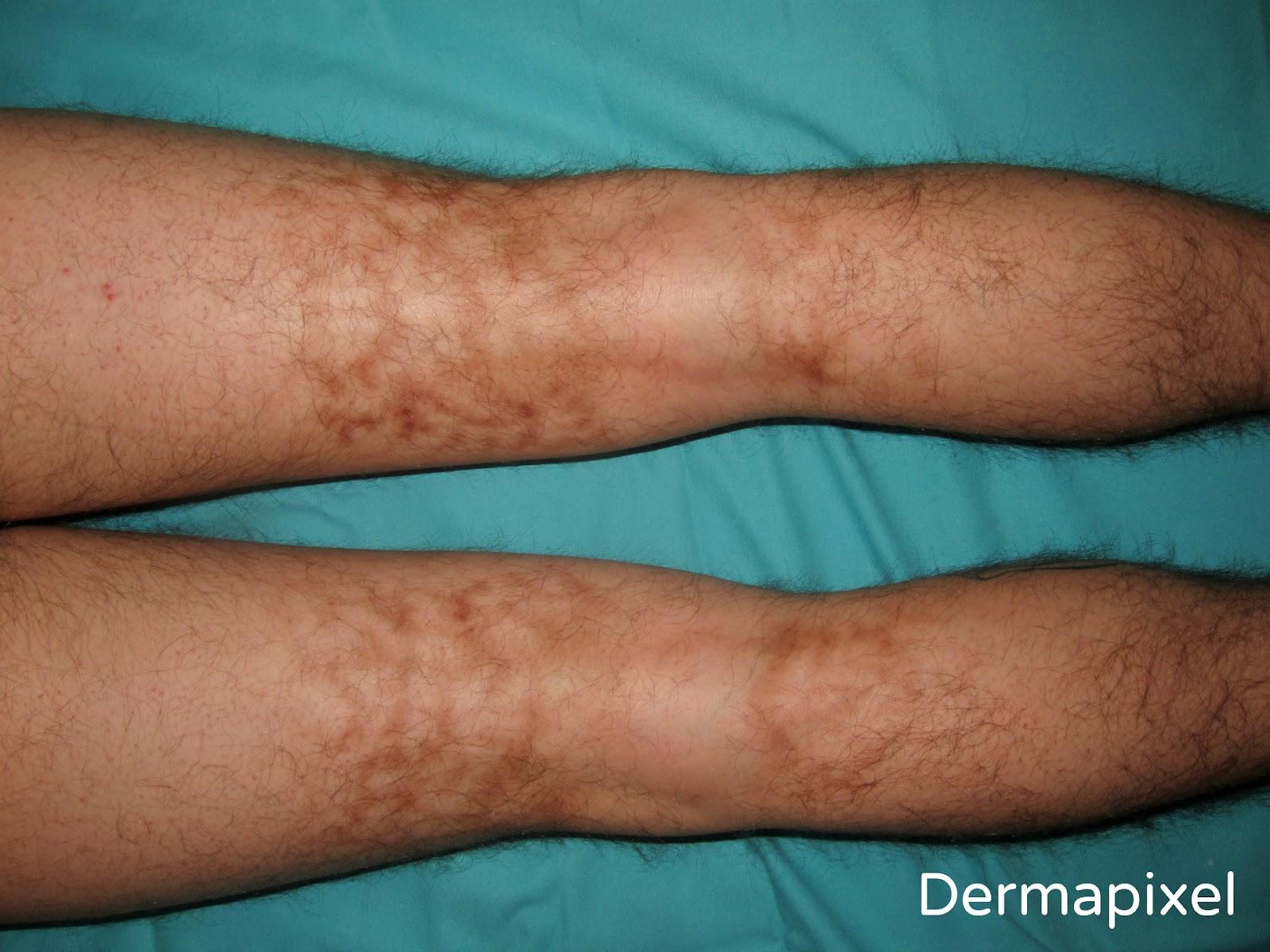 venas en las piernas provocadas