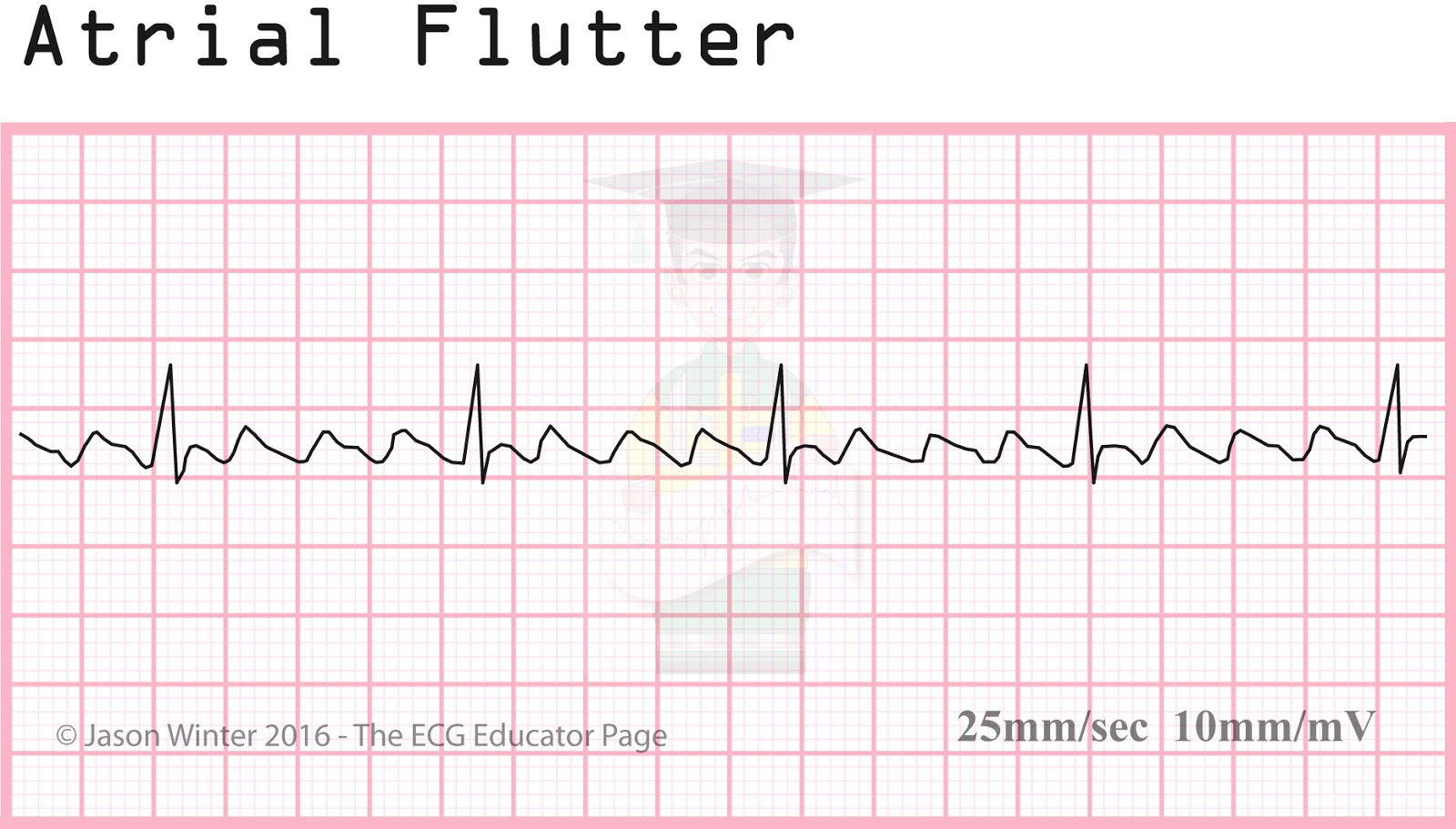 Atrial Fibrillation  Ecg Strip - Porn Pics And Movies-9115