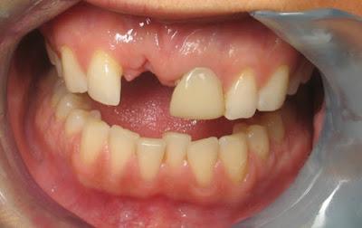 Gãy răng cửa nên phục hồi bằng cách nào hiệu quả nhất