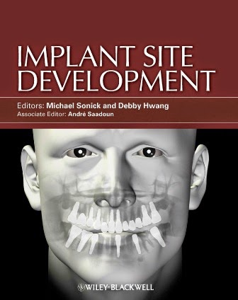 Implant Site Development - Michael Sonick,Debby Hwang -1st.ed. © 2012.pdf