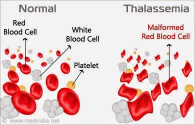 Bahaya Penyakit Thalassemia