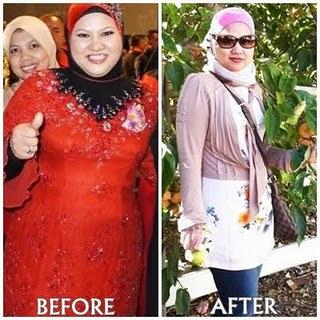 Premium Beautiful corset, pakaian dalam untuk kesihatan dan menguruskan badan