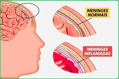 Meningite meningocócica: saiba como se prevenir