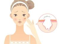 6 Metode Menghilangkan Bopeng Menurut dr. Dewi Inong Irana, SpKK
