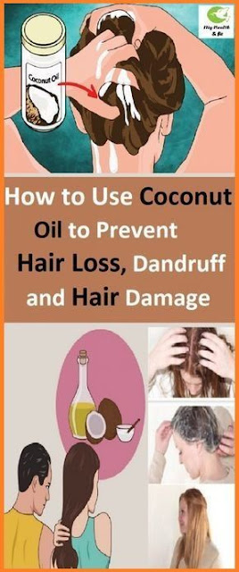 Use Coconut Oil to Prevent Hair Loss, Dandruff and Hair Damage