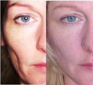 how to look younger with simple face firming exercises